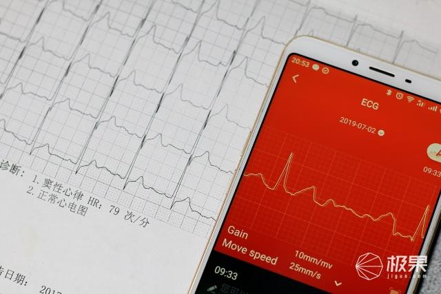 埃微i7E,能监测心血图和血压的智能手环