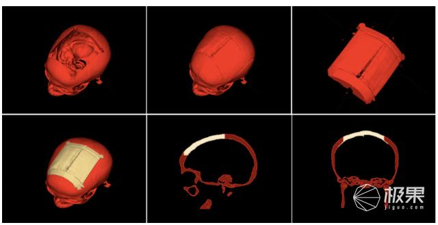 奥地利研究人员发布一款可3D打印颅骨植入物的自动化设计软件