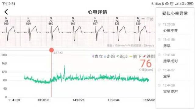 心柔家用心電監測儀