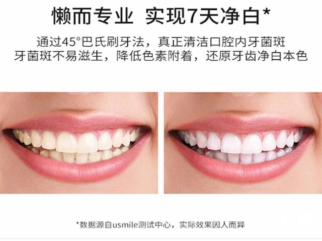 黑科技产品,给你一口净白牙齿usmile45度小白刷