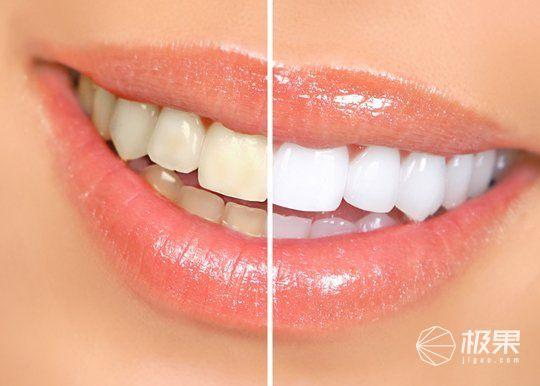 牙齒健康的秘密,用上它,牙齒問題迎刃而解